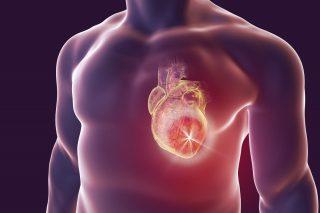 sudden cardiac death solution by dr Aparna Jaswal